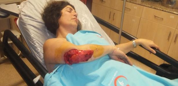 Zonguldak'ta Köpeğin Saldırdığı Kadının Kolu Parçalandı